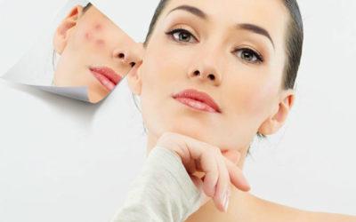 лечение проблемной кожи-постакне